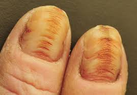 nail salon injury due to negligence is actionable minnesota