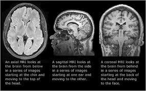Brain Mri Anatomy Brain Anatomy Massachusetts General Hospital Boston Ma