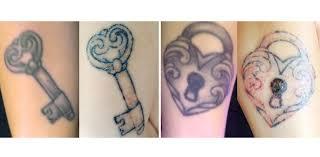 i my tattoo tattoo removal plastic surgery hub