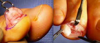 nail bed pain when ingrown toenail pain may be caused by a subungual exostosis