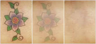 12 how to remove tattoo ink from skin at home how many