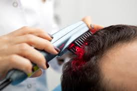 low level light therapy hair hair loss treatment low level laser therapy lllt for hair loss