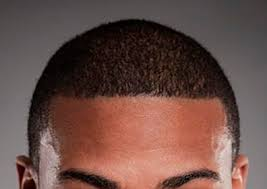 hair transplant for black women how ethnicity affects hair transplants