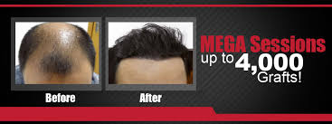 hair transplant costs in the philippines maxim hair restoration psst ph your featured online lifestyle