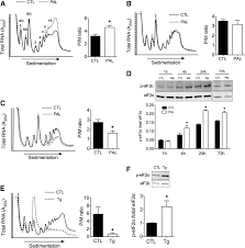 palmitate induces mrna translation and increases er protein load