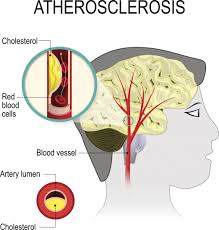 Illnesses That Cause Blindness Cerebrovascular Disease Causes Symptoms And Treatment