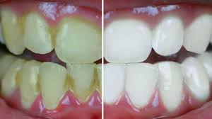 Dentist That Do Teeth Whitening Dentists Do Not Want This To Come To Light This Is The Best
