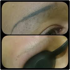 tattoo eyebrow removal before and after u2022 lorena oberg