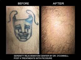 laser tattoo removal bellevue picosure tattoo eraser seattle