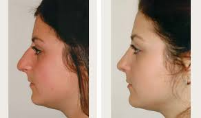 Challenge Through Your Nose Rhinoplasty Before And After Nose Before And After