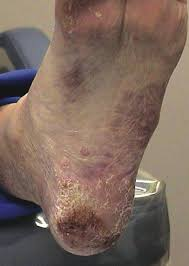 planters wart on foot what you should know about lichen planus podiatry today