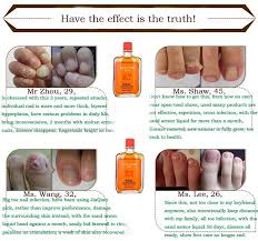 foot fungal nail treatment tcm essence oil hand and foot whitening
