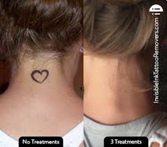 54 best tattoo removal before and after pictures images on