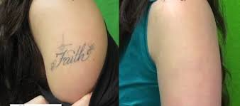 does laser tattoo removal hurt