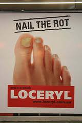 over the counter nail fungus treatments u2013 are there any that might