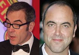coronation street hair transplants james nesbitt not looking great baldtruthtalk com