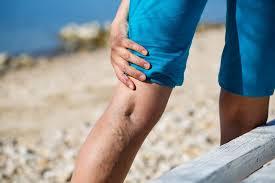 bindegewebsschwäche beine krfadern auch bei jüngeren menschen neue therapie mit