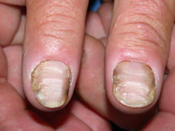 management of fungal nail infections bpj 19 february 2009