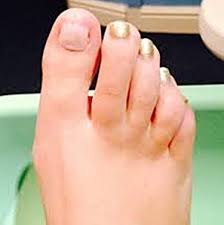toenail regrowth after a fungal infection
