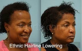 hairline restoration for black men ethnic hair restoration dallas ethnic hair surgery plano tx