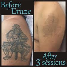 eraze laser clinic gc erazelaserclinic instagram photos and