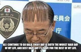 Receding Hairline Meme - damn you receding hairline damn you album on imgur