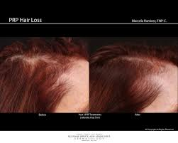 Injection In Scalp For Hair Growth New Hair Loss Treatment Prp
