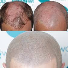 paul clark scalp micro pigmentation the official blog for
