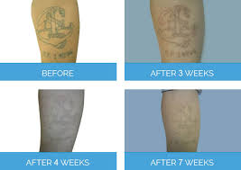 laser tattoo removal london cost risk benefit procedure nu