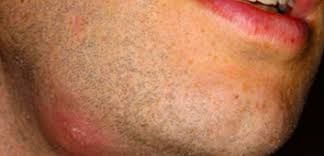 Causes Of Blind Pimples Pimple Under Skin No Head Hard Swollen Hurts Cyst On Chin
