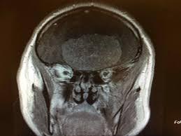neurosurgery photobackstory