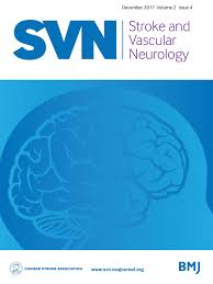 flashing lights in eye stroke eyes and stroke the visual aspects of cerebrovascular disease