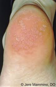 How Do You Get Planters Warts by Warts American Osteopathic College Of Dermatology Aocd