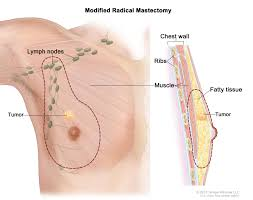 Heart Wall Anatomy About Male Breast Cancer Breast Cancer Care Team University
