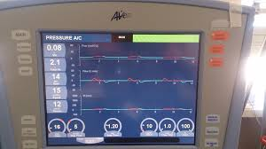 Assist Control Ventilation My Initial Mechanical Ventilation Setup On The Carefusion Avea