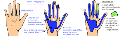 nailbed and finger infections bone