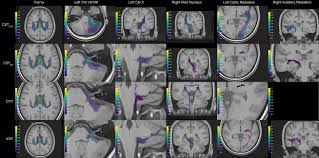 frontiers merged group tractography evaluation with selective