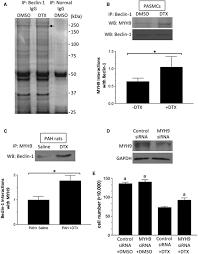 docetaxel reverses pulmonary vascular remodeling by decreasing