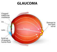 The Anatomy And Physiology Of The Eye Glaucoma