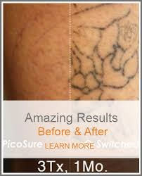 renewal tattoo removal u2013 safe fast complete tattoo removal