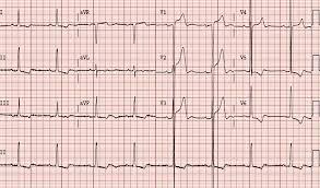 strain pattern ecg meaning lvh3 jpg ssl 1