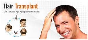 hair transplant calculator transplant surgery procedure faq know about hair transplant