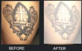 tattoo vanish healing tattoo vanish review does the method work