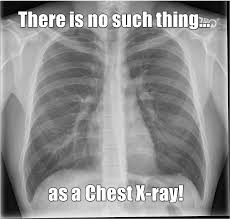 Xray Meme - there is no such thing as a chest x ray 3 off limit terms for