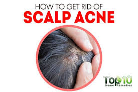 home remedies for hair loss for over 50 how to get rid of scalp acne top 10 home remedies