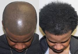 african american hair transplant african american hair transplant testimonials reviews about dr