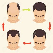 male hair loss stages set man before and after hair treatment