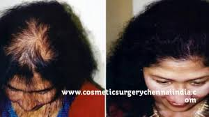 Hair Loss Cure For Women Tips For Hair Growth Tips For Healthy Hair Trichologist Hair