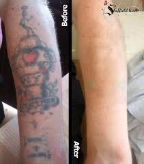 sheffield laser clinic laser tattoo removal from just 25 in