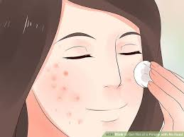 Blind Pimples On Chin 3 Ways To Get Rid Of A Pimple With No Head Wikihow